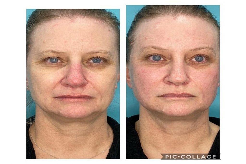 ULTRAFormer - Non Surgical Face Lift